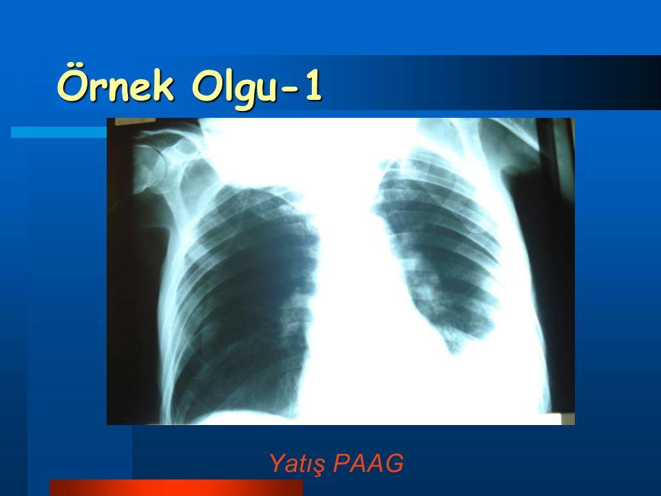 Örnek Olgu-1 Yatış PAAG