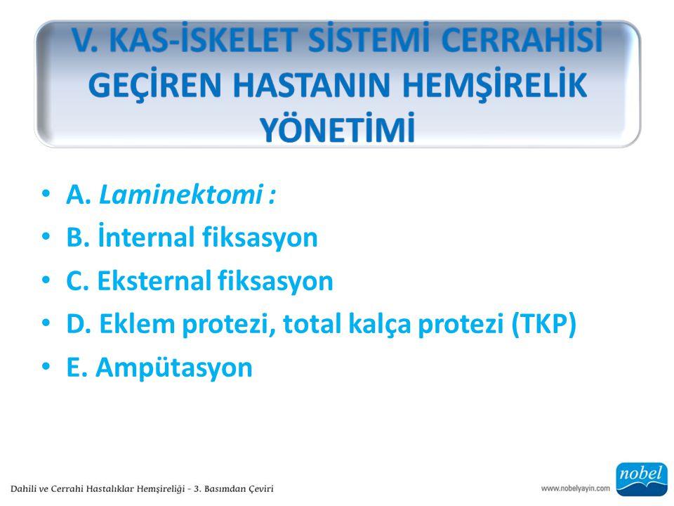 A. Laminektomi : B. İnternal fiksasyon C. Eksternal fiksasyon D. Eklem protezi, total kalça protezi (TKP) E. Ampütasyon