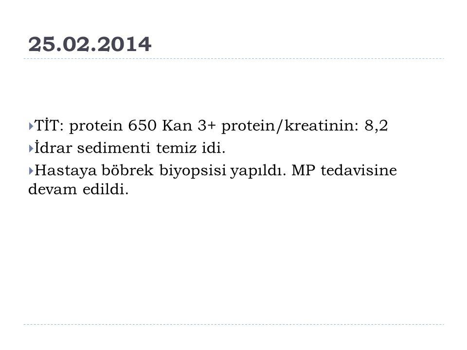 25.02.2014  TİT: protein 650 Kan 3+ protein/kreatinin: 8,2  İdrar sedimenti temiz idi.  Hastaya böbrek biyopsisi yapıldı. MP tedavisine devam edild
