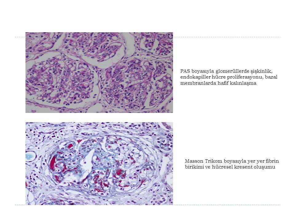 PAS boyasıyla glomerüllerde şişkinlik, endokapiller hücre proliferasyonu, bazal membranlarda hafif kalınlaşma Masson Trikom boyasıyla yer yer fibrin b