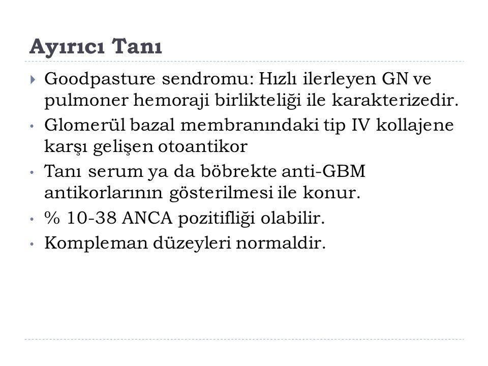 Ayırıcı Tanı  Goodpasture sendromu: Hızlı ilerleyen GN ve pulmoner hemoraji birlikteliği ile karakterizedir. Glomerül bazal membranındaki tip IV koll