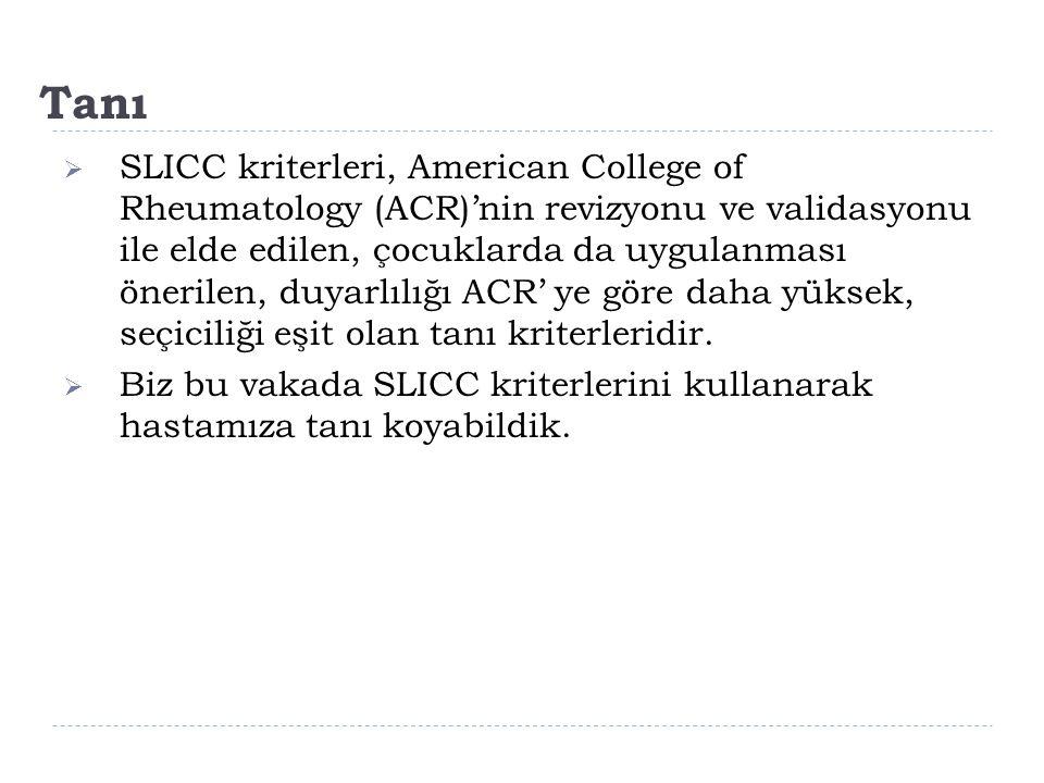 Tanı  SLICC kriterleri, American College of Rheumatology (ACR)'nin revizyonu ve validasyonu ile elde edilen, çocuklarda da uygulanması önerilen, duya