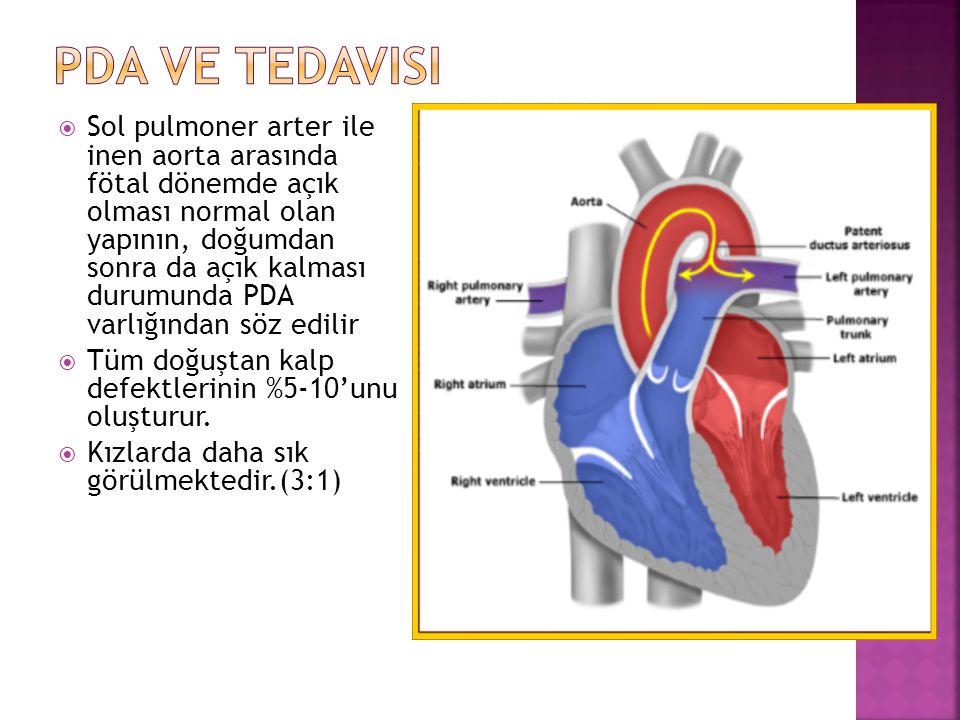  Sol pulmoner arter ile inen aorta arasında fötal dönemde açık olması normal olan yapının, doğumdan sonra da açık kalması durumunda PDA varlığından söz edilir  Tüm doğuştan kalp defektlerinin %5-10'unu oluşturur.