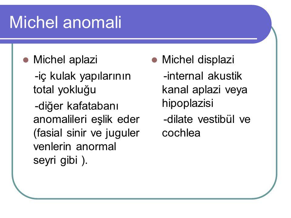 Michel anomali Michel aplazi -iç kulak yapılarının total yokluğu -diğer kafatabanı anomalileri eşlik eder (fasial sinir ve juguler venlerin anormal seyri gibi ).
