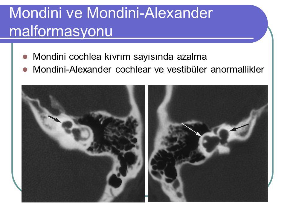 Mondini ve Mondini-Alexander malformasyonu Mondini cochlea kıvrım sayısında azalma Mondini-Alexander cochlear ve vestibüler anormallikler