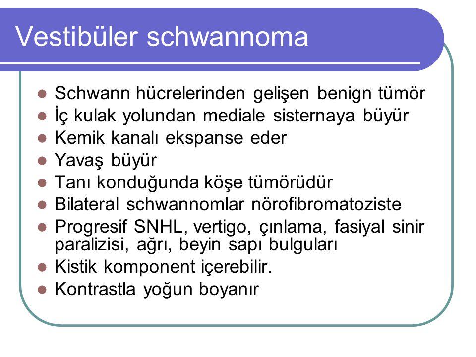 Vestibüler schwannoma Schwann hücrelerinden gelişen benign tümör İç kulak yolundan mediale sisternaya büyür Kemik kanalı ekspanse eder Yavaş büyür Tanı konduğunda köşe tümörüdür Bilateral schwannomlar nörofibromatoziste Progresif SNHL, vertigo, çınlama, fasiyal sinir paralizisi, ağrı, beyin sapı bulguları Kistik komponent içerebilir.