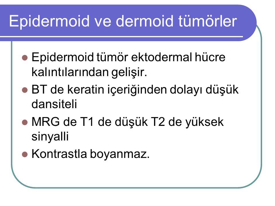 Epidermoid ve dermoid tümörler Epidermoid tümör ektodermal hücre kalıntılarından gelişir.