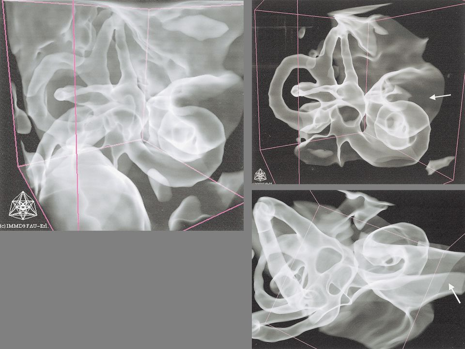 Menenjiom Temporal kemik petröz parçasının arka yüzeyi boyunca gelişir Akustik nörinomdan ayrımı yapılmalıdır.