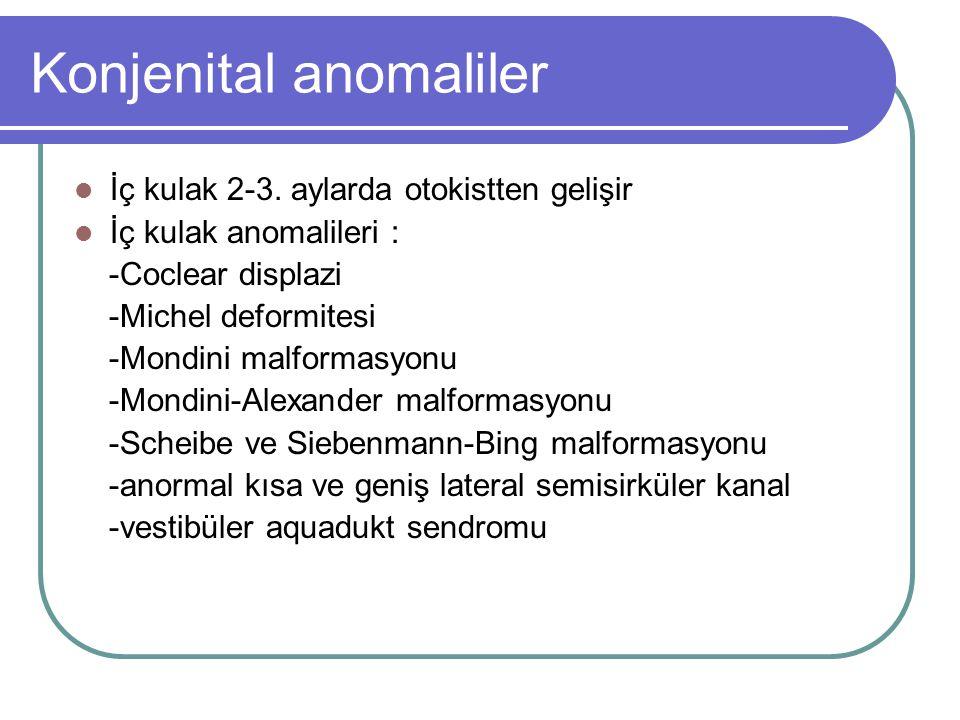 Konjenital anomaliler İç kulak 2-3.