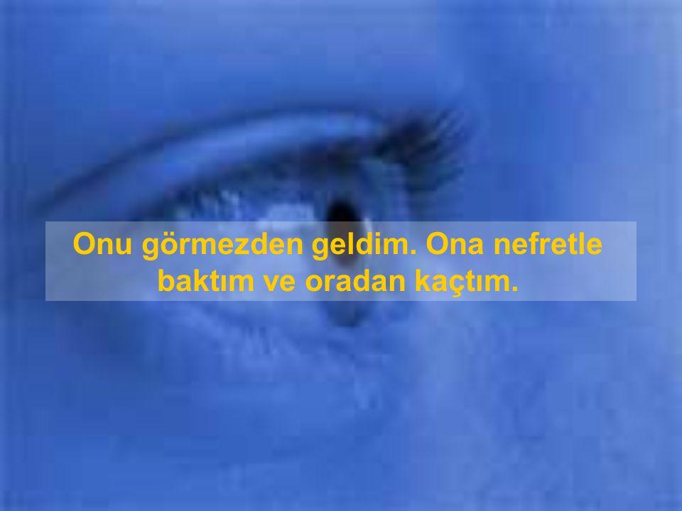 Ertesi gün sınıfta bir arkadaşım dedi ki, Eeee, senin annenin yalnızca bir gözü var!