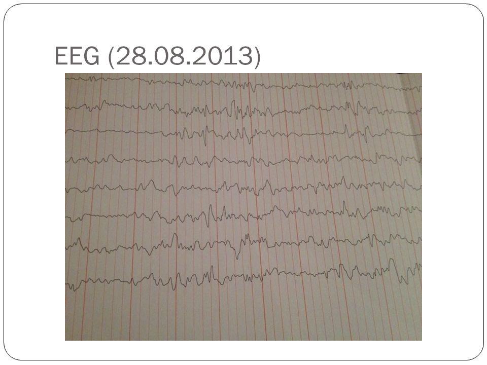 EEG (28.08.2013)