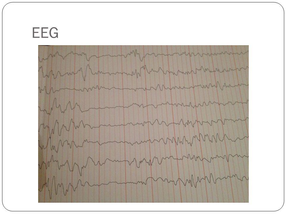 Epileptik ensefalopati ile uyumlu, hemisfer arka bölgelerinde daha belirgin sık tekrarlayan,multifokal epileptiform anomali.