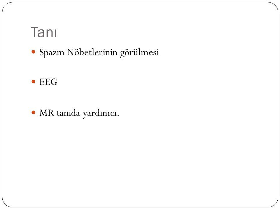 Tanı Spazm Nöbetlerinin görülmesi EEG MR tanıda yardımcı.