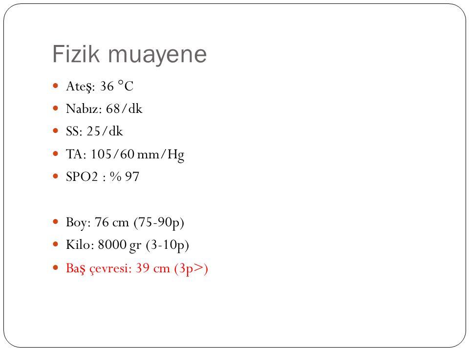 Fizik muayene Ate ş : 36 °C Nabız: 68/dk SS: 25/dk TA: 105/60 mm/Hg SPO2 : % 97 Boy: 76 cm (75-90p) Kilo: 8000 gr (3-10p) Ba ş çevresi: 39 cm (3p>)