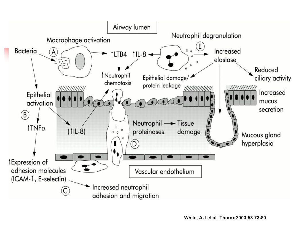 Donaldson, G C et al. Thorax 2002;57:847-852 Alevlenme ve FEV1