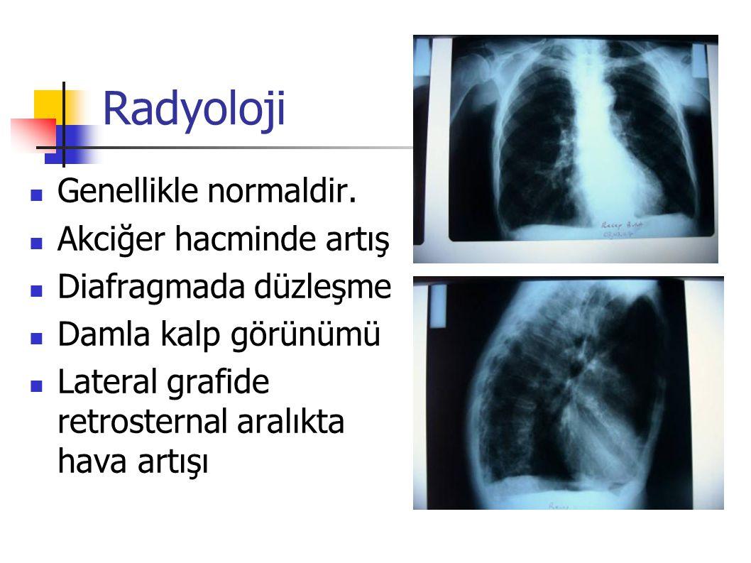 Radyoloji Amfizemin ön plana çıktığı durumlarda özellikle akciğer periferindeki ince vasküler görüntülerde belirgin azalma olur ve büller görülebilir.