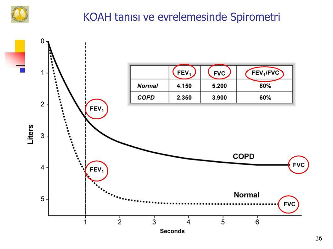 36 KOAH tanısı ve evrelemesinde Spirometri