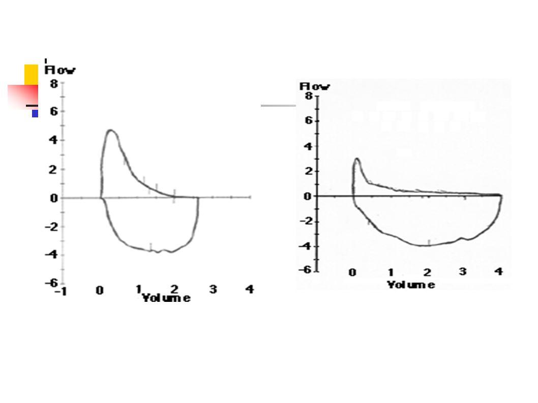 Bronkodilatatör Reverzibilite testi Başlangıç değerine göre % 15 artış + 200 mL mutlak değişiklik FEV1'deki değişiklik öngörülen değerin yüzdesi Bronkodilatatör sonrasında FEV1'de büyük oranda artış (400 mL) astım tanısını destekler www.nice.org.uk/CG012NICEguideline