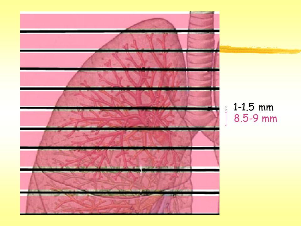 1-1.5 mm 8.5-9 mm
