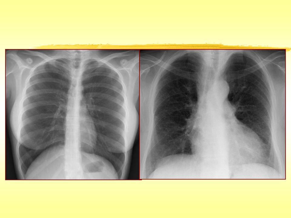 İnterlobüler Septal Kalınlaşma İnterlobüler septumların fibrozis, ödem veya hücre infiltrasyonu nedeniyle anormal kalınlaşmasıdır.