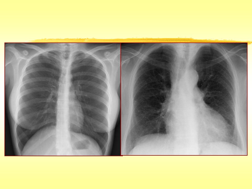 Sekonder pulmoner lobül ve pulmoner arteriol (baryum arteriografi)