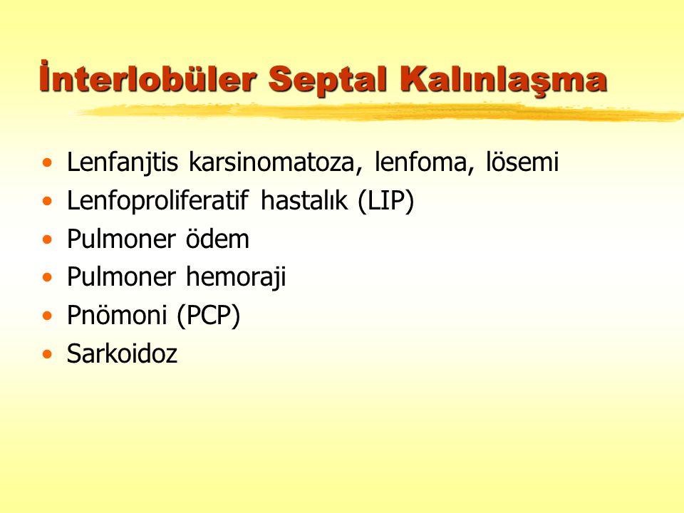İnterlobüler Septal Kalınlaşma Lenfanjtis karsinomatoza, lenfoma, lösemi Lenfoproliferatif hastalık (LIP) Pulmoner ödem Pulmoner hemoraji Pnömoni (PCP