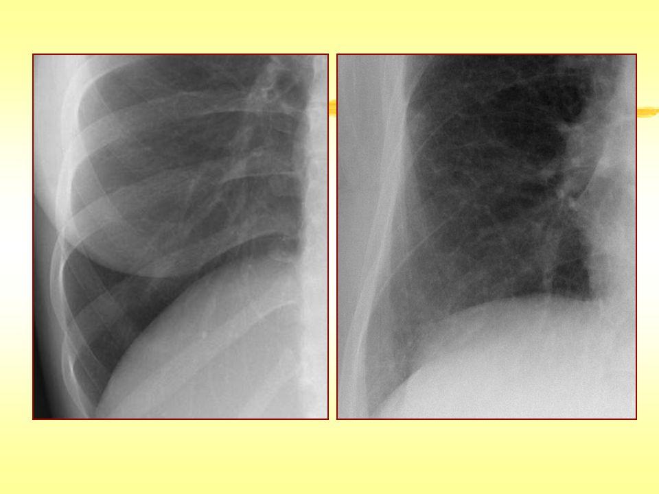 İnterlobüler Septal Kalınlaşma Lenfanjtis karsinomatoza, lenfoma, lösemi Lenfoproliferatif hastalık (LIP) Pulmoner ödem Pulmoner hemoraji Pnömoni (PCP) Sarkoidoz