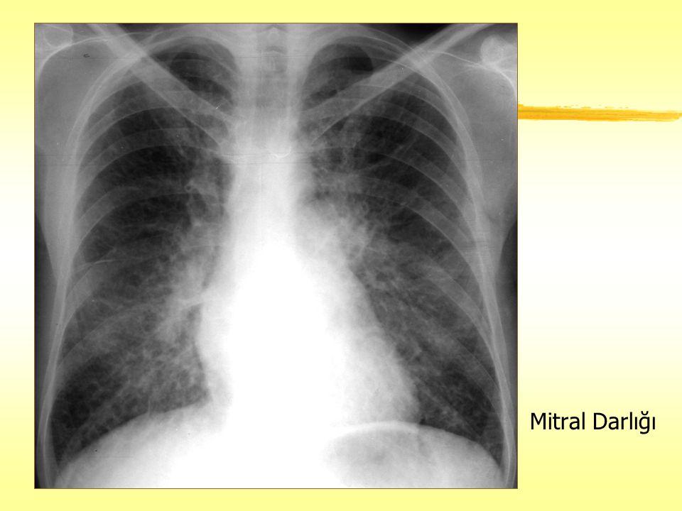 Mitral Darlığı