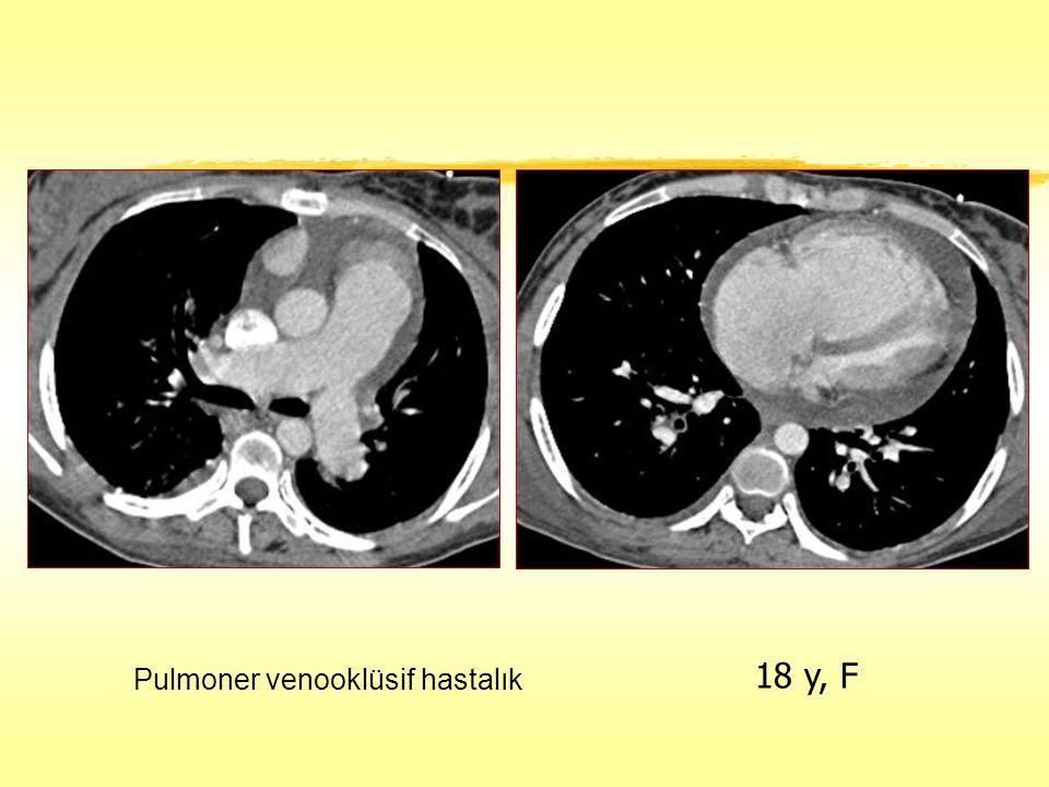 Pulmoner venooklüsif hastalık 18 y, F