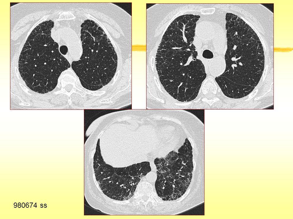 İnterlobüler Septal Kalınlaşma İdyopatik pulmoner fibrozis ve UIP'nin diğer nedenleri Nonspesifik interstisyel pnömoni Silikozis/ kömür işçileri pnömokonyozu, talkozis Asbestoz Hipersensitivite pnömonisi (kronik) Amiloidoz