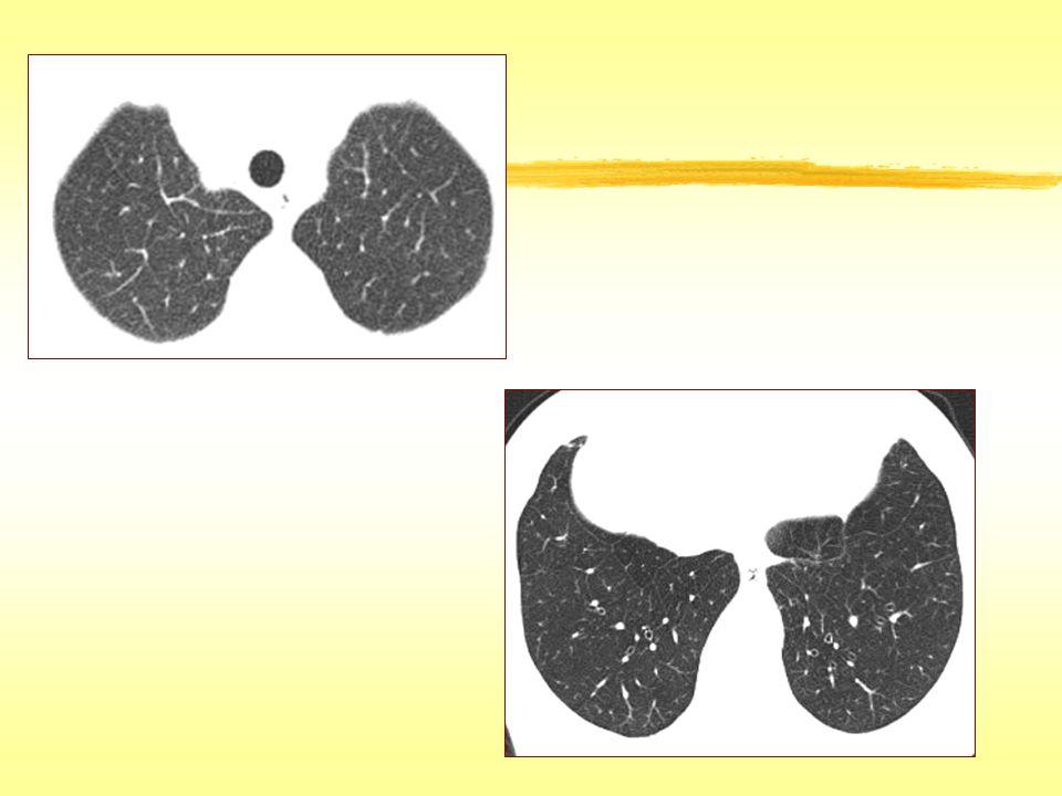 Bal Peteği İdyopatik pulmoner fibrozis ve UIP'nin diğer nedenleri Asbestoz Hipersensitivite pnömonisi (kronik) Sarkoidoz Nonspesifik interstisyel pnömoni Diğer idyopatik interstisyel pnömoniler (DİP, OP, Aku İP) Amiloidoz Silikozis/ kömür işçileri pnömokonyozu
