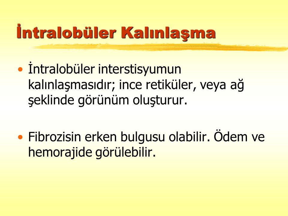 İntralobüler Kalınlaşma İntralobüler interstisyumun kalınlaşmasıdır; ince retiküler, veya ağ şeklinde görünüm oluşturur. Fibrozisin erken bulgusu olab