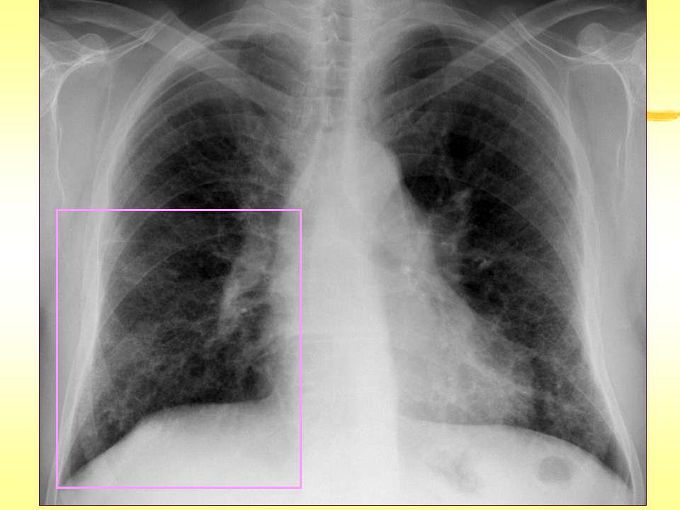 İntralobüler Kalınlaşma  İdyopatik pulmoner fibrozis ve UIP'nin diğer nedenleri  Hipersensitivite pnömonisi (kronik)  Asbestoz  Nonspesifik interstisyel pnömoni ve diğer idyopatik interstisyel pnömoniler  Lenfanjitis karsinomatoza/ lenfoma/ lösemi  Pulmoner ödem- hemoraji  Pnömoni (viral, PCP)  Alveolar proteinozis  Amiloidoz