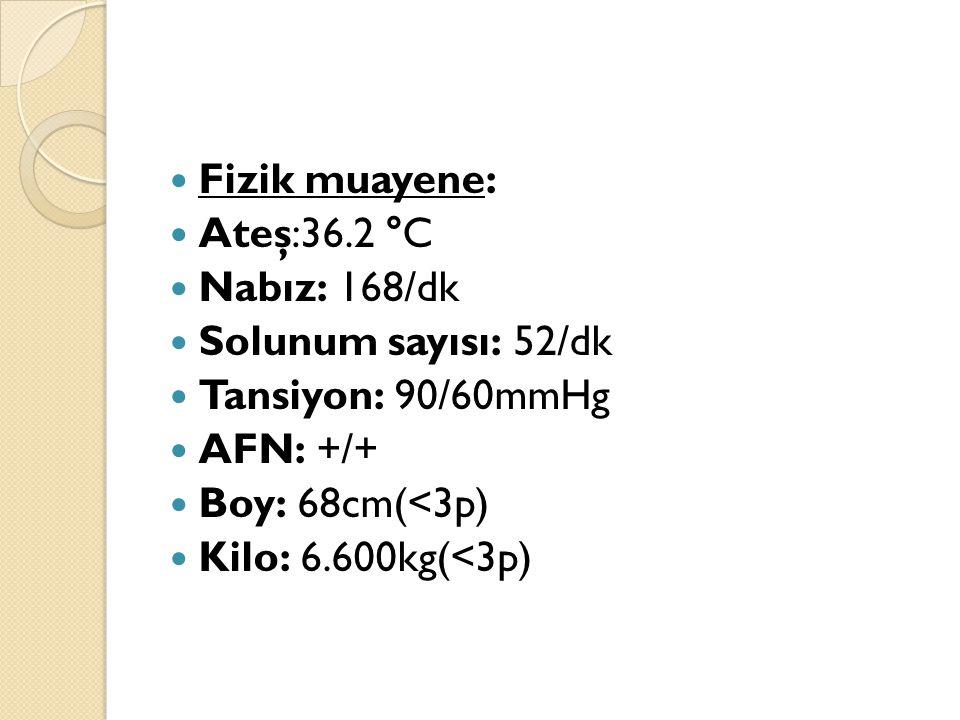 Fizik muayene: Ateş:36.2 °C Nabız: 168/dk Solunum sayısı: 52/dk Tansiyon: 90/60mmHg AFN: +/+ Boy: 68cm(<3p) Kilo: 6.600kg(<3p)