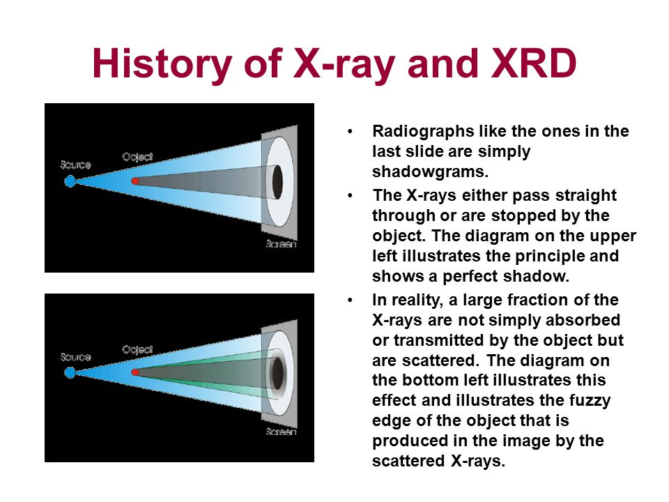 History of X-ray and XRD Radiographs like the ones in the last slide are simply shadowgrams. The X-rays either pass straight through or are stopped by