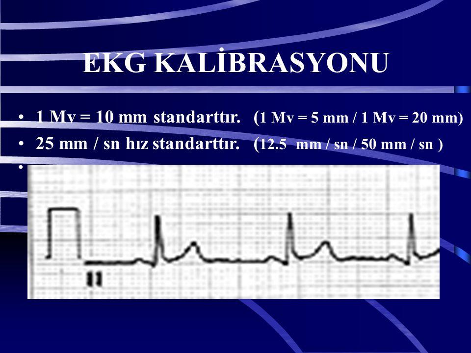 20 EKG KALİBRASYONU 1 Mv = 10 mm standarttır. ( 1 Mv = 5 mm / 1 Mv = 20 mm) 25 mm / sn hız standarttır. ( 12.5 mm / sn / 50 mm / sn )