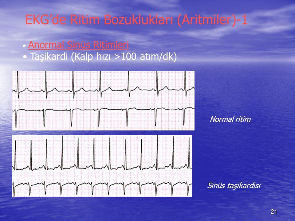 21 EKG'de Ritim Bozuklukları (Aritmiler)-1 Anormal Sinüs Ritimleri Taşikardi (Kalp hızı >100 atım/dk) Normal ritim Sinüs taşikardisi