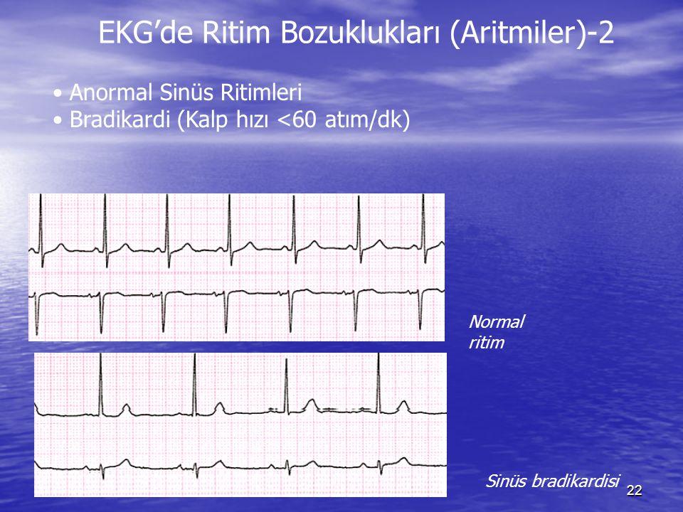 22 Normal ritim Sinüs bradikardisi Anormal Sinüs Ritimleri Bradikardi (Kalp hızı <60 atım/dk) EKG'de Ritim Bozuklukları (Aritmiler)-2
