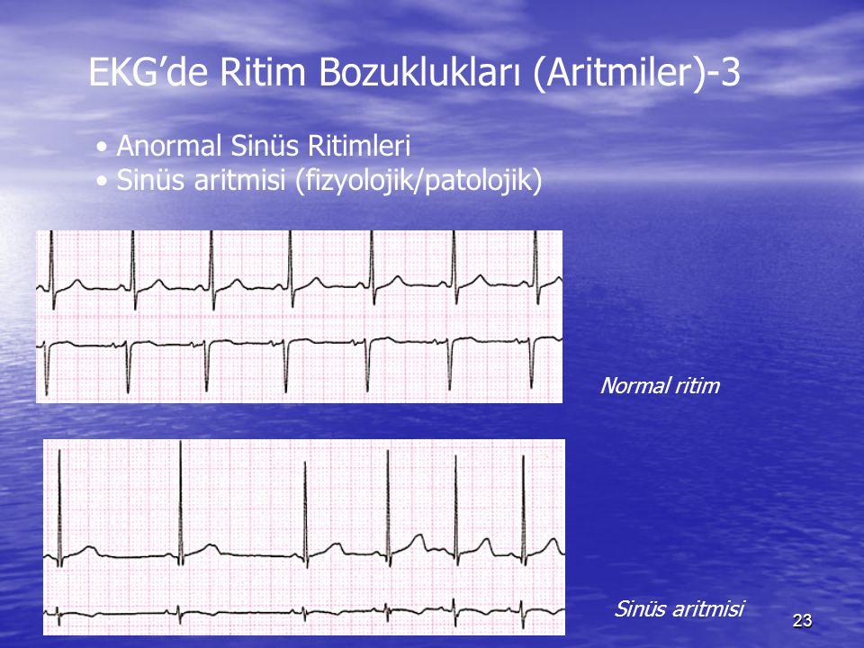 23 EKG'de Ritim Bozuklukları (Aritmiler)-3 Anormal Sinüs Ritimleri Sinüs aritmisi (fizyolojik/patolojik) Normal ritim Sinüs aritmisi