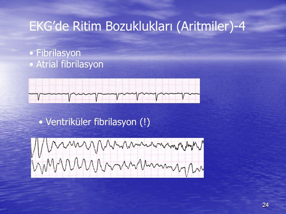 24 EKG'de Ritim Bozuklukları (Aritmiler)-4 Fibrilasyon Atrial fibrilasyon Ventriküler fibrilasyon (!)
