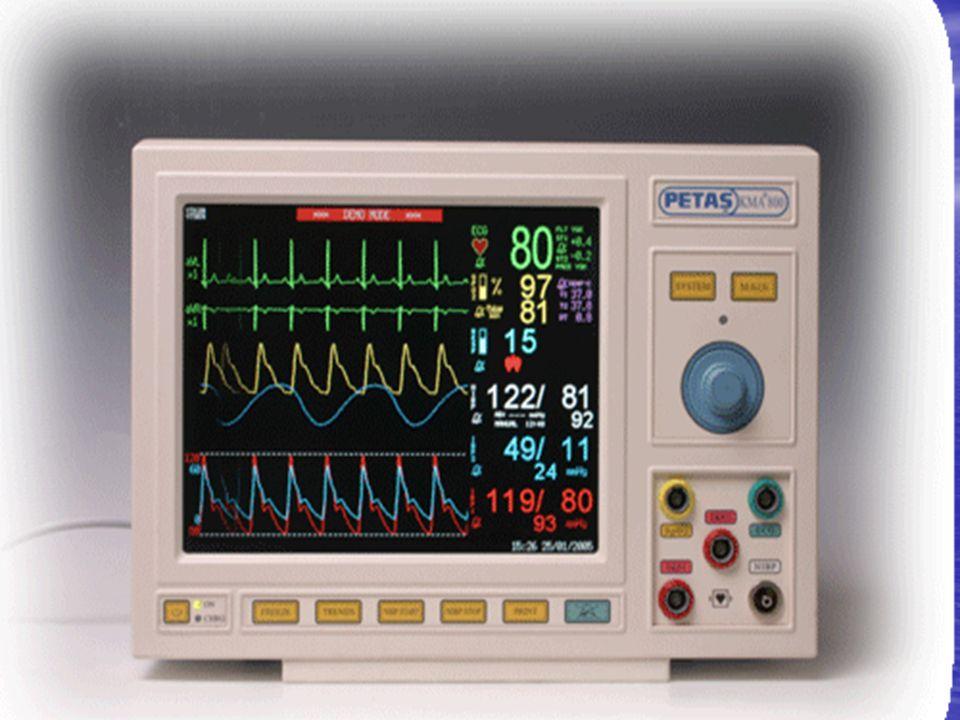 16 NIBP=Kan basıncı kan damarlarının duvarlarına uygulanan basınçtır.