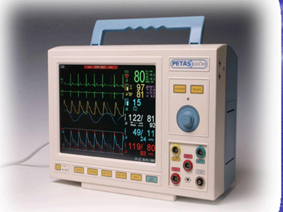 18 Elektrokardiyografi Elektrokardiyografi Kalbin elektriksel aktivitesinin izlenmesi Kalbin elektriksel aktivitesinin izlenmesi Kalp hızı Kalp hızı Kalp ritmi Kalp ritmi Myokardın oksijenlenmesi ile ilgili bilgiler verir.