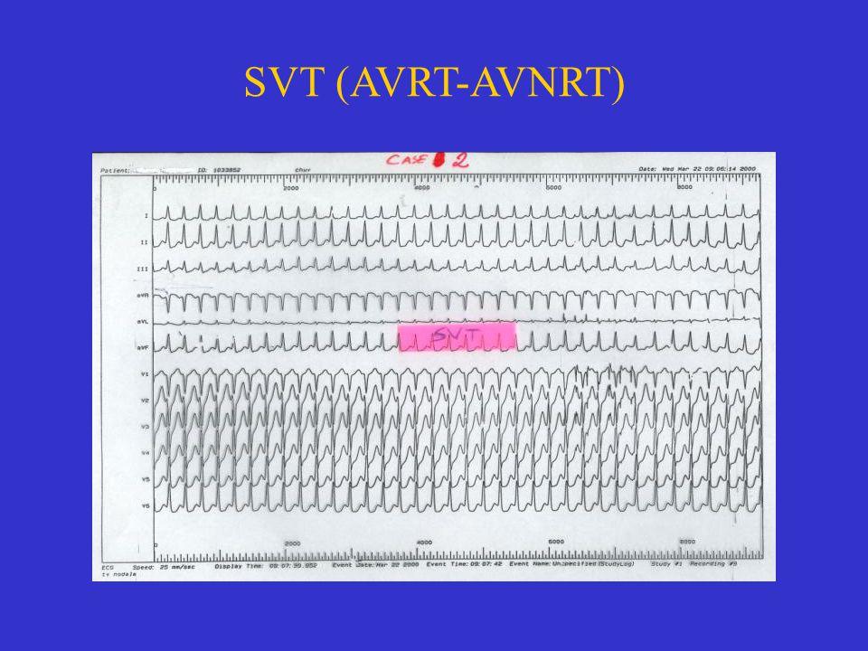 SVT (AVRT-AVNRT)