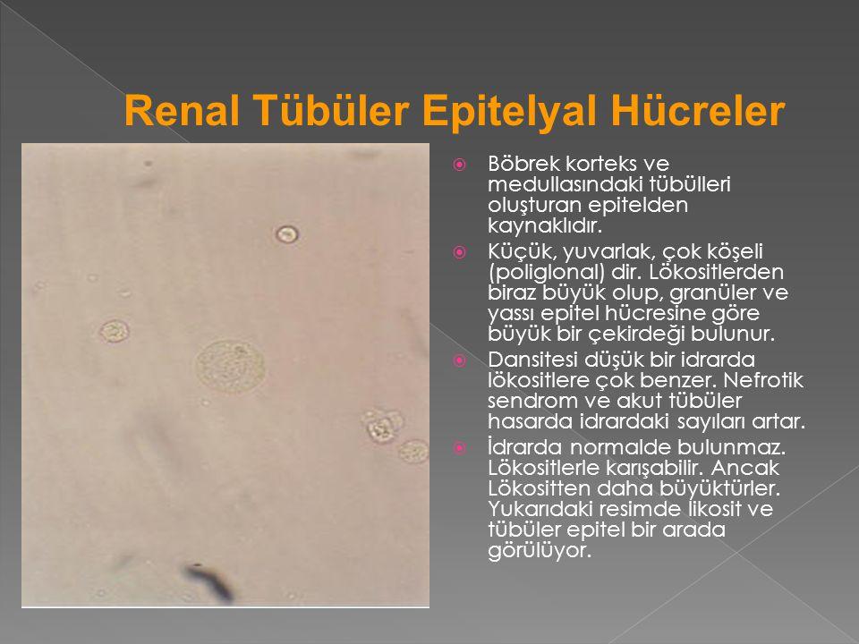  Böbrek korteks ve medullasındaki tübülleri oluşturan epitelden kaynaklıdır.  Küçük, yuvarlak, çok köşeli (poliglonal) dir. Lökositlerden biraz büyü