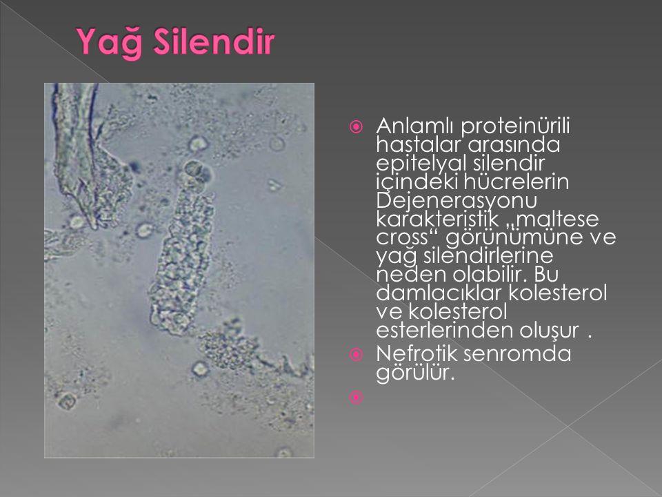 """ Anlamlı proteinürili hastalar arasında epitelyal silendir içindeki hücrelerin Dejenerasyonu karakteristik """"maltese cross"""" görünümüne ve yağ silendir"""