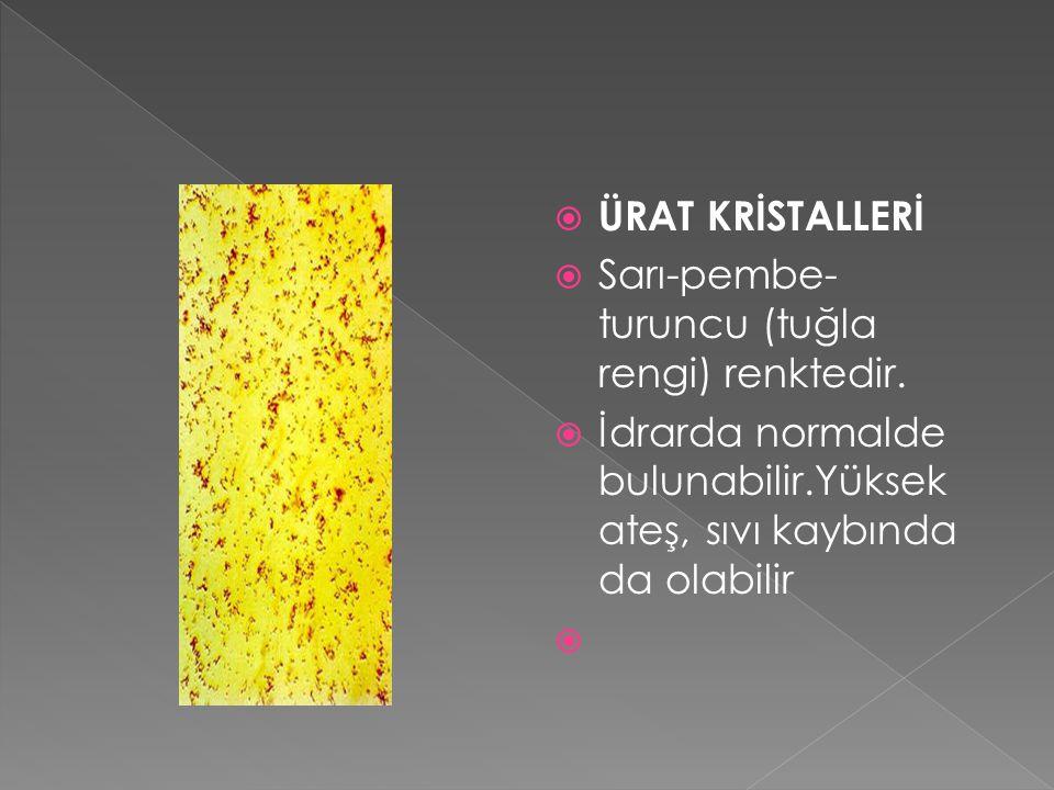  ÜRAT KRİSTALLERİ  Sarı-pembe- turuncu (tuğla rengi) renktedir.  İdrarda normalde bulunabilir.Yüksek ateş, sıvı kaybında da olabilir 