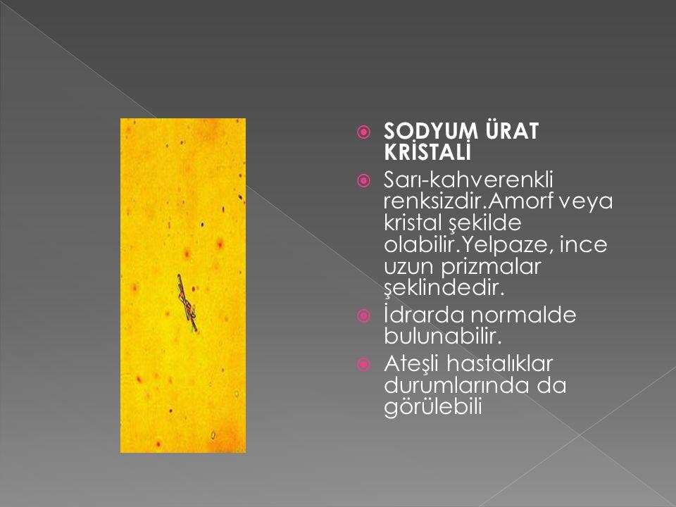  SODYUM ÜRAT KRİSTALİ  Sarı-kahverenkli renksizdir.Amorf veya kristal şekilde olabilir.Yelpaze, ince uzun prizmalar şeklindedir.  İdrarda normalde