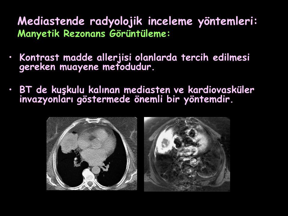 Mediastende radyolojik inceleme yöntemleri: Manyetik Rezonans Görüntüleme: Kontrast madde allerjisi olanlarda tercih edilmesi gereken muayene metodudu