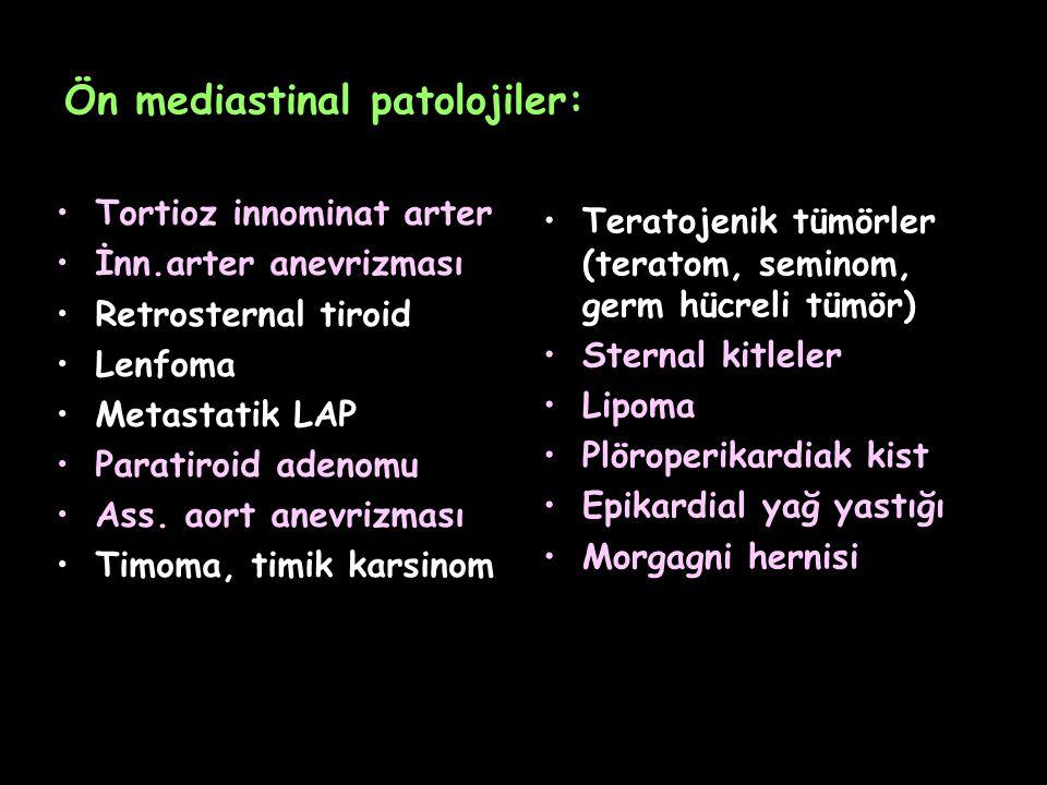 Ön mediastinal patolojiler: Tortioz innominat arter İnn.arter anevrizması Retrosternal tiroid Lenfoma Metastatik LAP Paratiroid adenomu Ass. aort anev