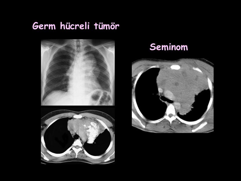 Germ hücreli tümör Seminom